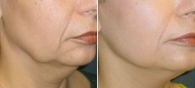 antes-depues-lifting-con-smasectomia-lateral-pre-post